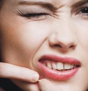 5 Cara Hilangkan Jerawat Dalam Semalam Zona Wanita Kesehatan Kecantikan Dan Gaya Hidup